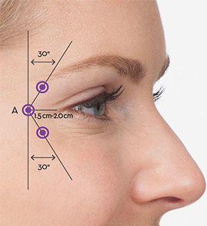 Injection Techniques | BOTOX® Cosmetic